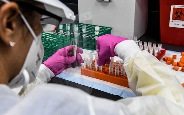 Vaccino coronavirus laborartorio